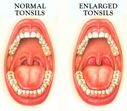 Enlarged-Tonsils-in-Children.jpg